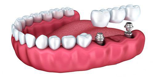 纯钛种植牙和钛合金种植牙的优缺点,以及四级钛和五级钛区别
