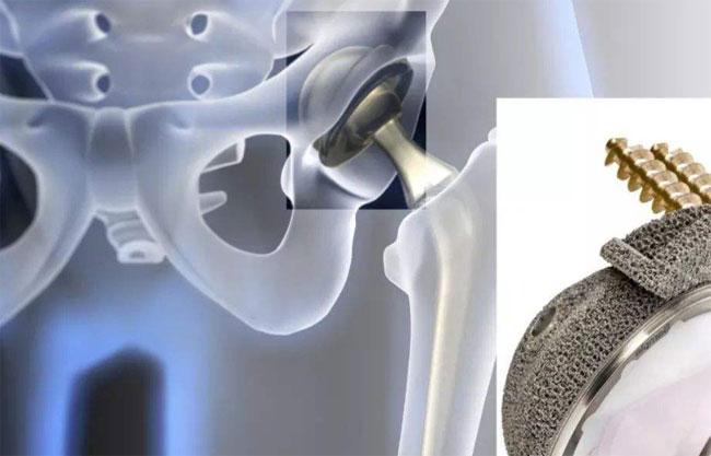 钛合金材料对人体的适应性及医疗用钛材种类